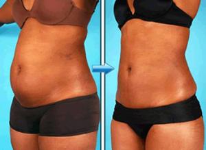 gordura abdominal como perder