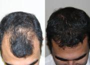 Keramax: Solução para a queda de cabelo