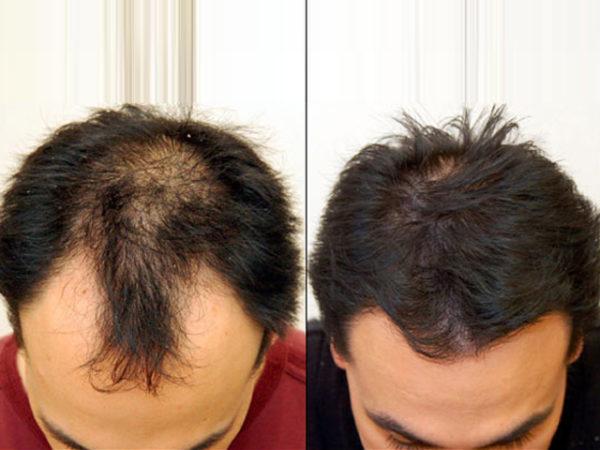 queda-cabelo-capillum