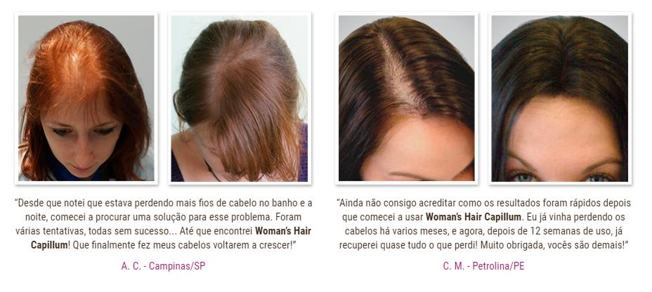 womans hair capillum