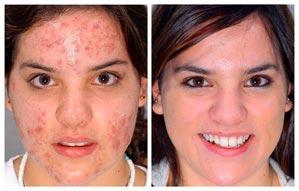 D'acné