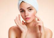 D'acné: o fim definitivo do seu problema com acne!