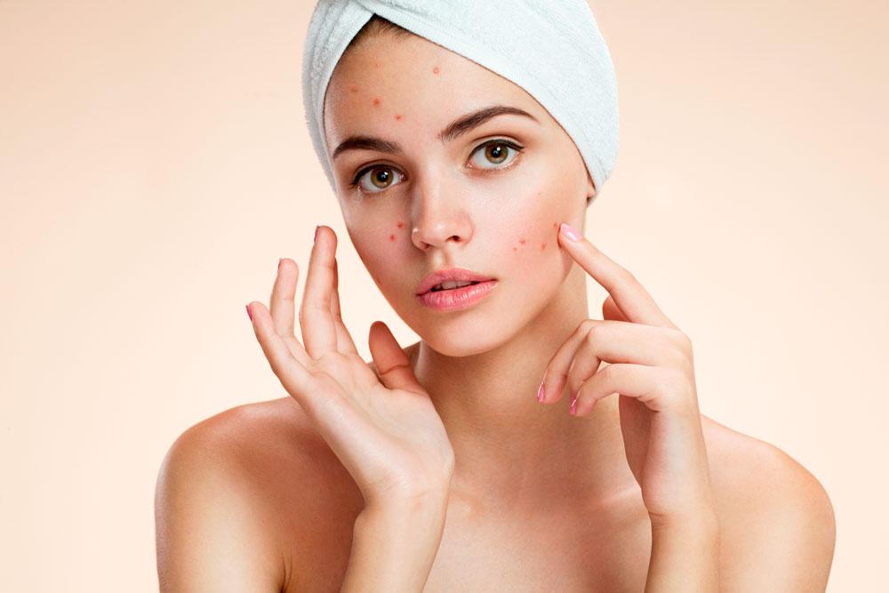 d'acne