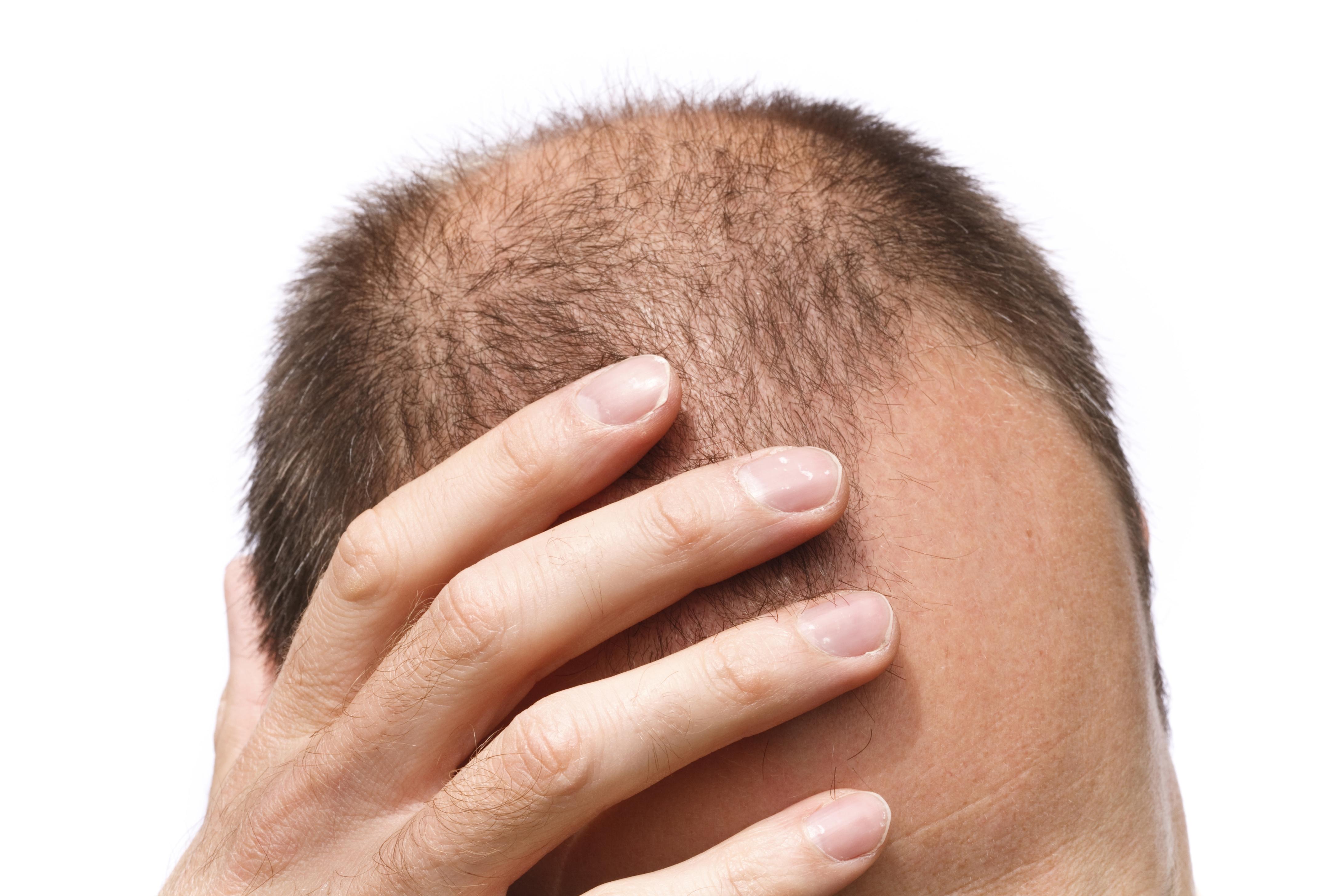 Hair Loss Blocker