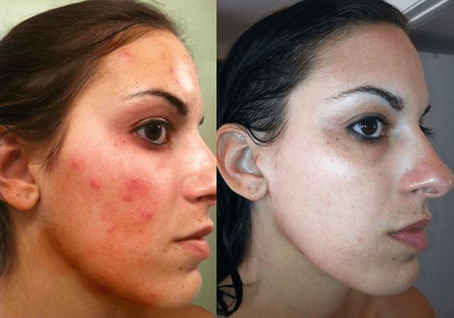 antes e depois do óleo de melaleuca