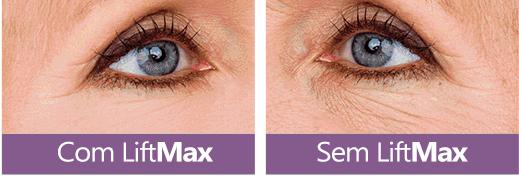 liftmax antes e depois