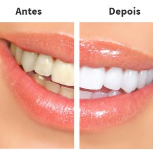 The Clean Smile: tenha dentes brancos usando luz de LED!