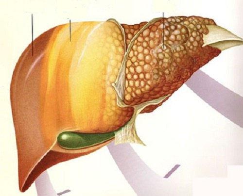 Remédios caseiros para gordura do fígado