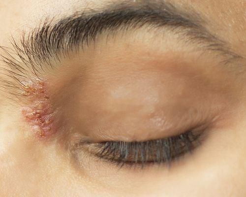 herpes zóster sintomas