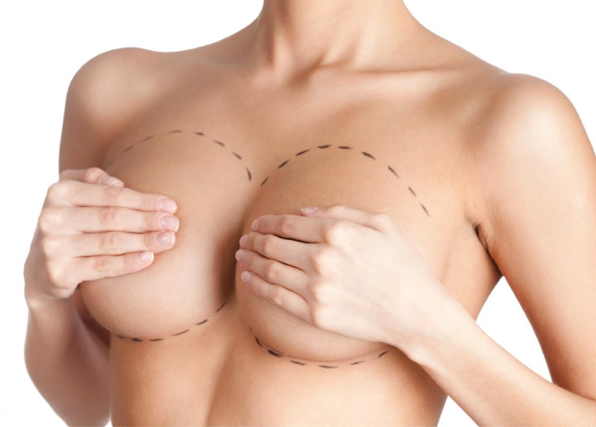 marcação cirúrgica para mamoplastia