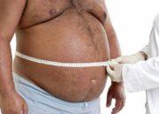 Cirurgia bariátrica pelo SUS: Como conseguir? Quem pode fazer?