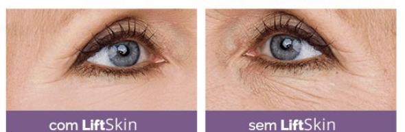 antes e depois de usar o LiftSkin