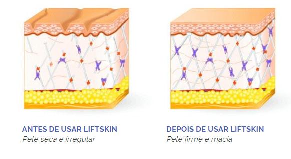 diagrama de como o LiftSkin age na pele